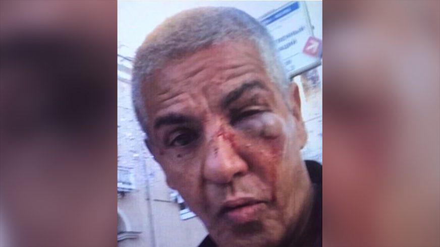 «Таксиста» Сами Насери избили в Москве